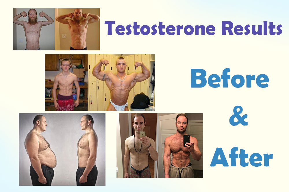 Treatment of Low Testosterone Before and After Results